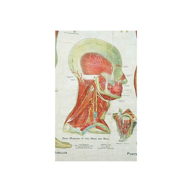 Framed Antique Medical Chart - Image 6 of 6